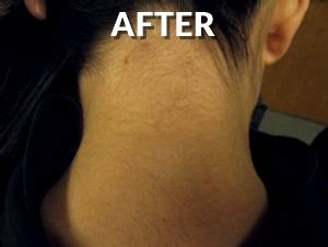 nj tattoo removal see our before and after photos safe gentle laser