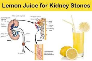home remedies for kidney stones lemon juice how to use lemon juice for kidney stones treatment