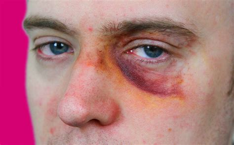 Black Yes 6 tips to get rid of a black eye sick journal