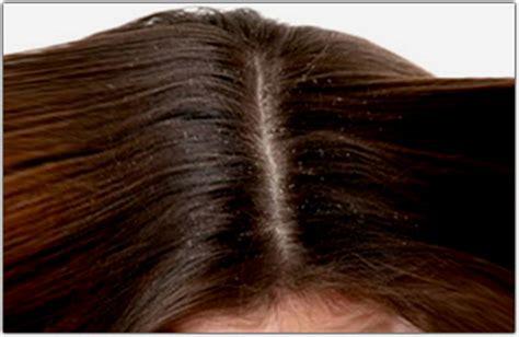 crosticine in testa dermatite seborroica capelli e forfora sono comuni