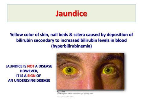 Anemia Stool Color ppt bilirubin metabolism jaundice powerpoint