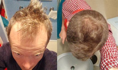 does reducing 5ar regrow hair how i thickened my hair and advanced my hairline with a