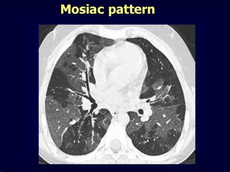 mosaic pattern radiology mosaic pattern
