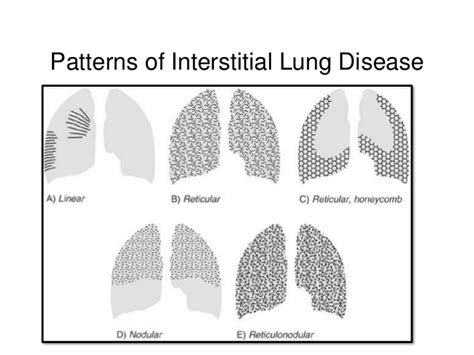 Lung Pattern Classification | approach to interstitial lung diseases