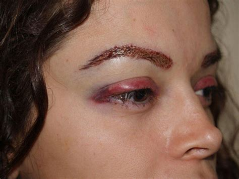 Eyelash Transplant Surgery Becames Popular 2 by Patient 64 Eyebrow And Eyelashes Photo Gallery