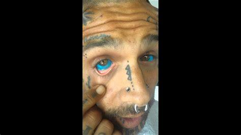 prove that alkaline eye is
