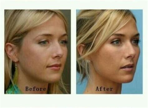 angular jaw line medinet plastic surgery procedures in asian and western