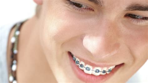 comfort dental braces cost dental care braces for teeth
