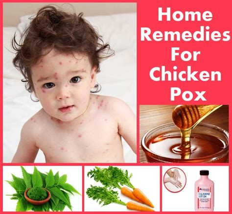 home remedies for chicken pox diy home things
