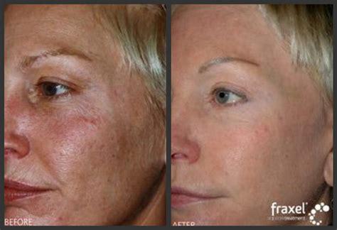 fraxel laser resurfacing  face skincare