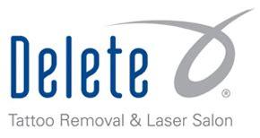 laser tattoo removal logo tattoo removal service in phoenix az delete tattoo