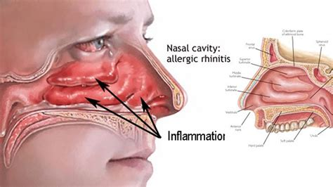 nasal congestion home remes for blocked sinuses ftempo