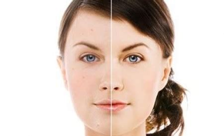 comfort laser clinics atlantis health beauty laser clinic 199 unlimited hair