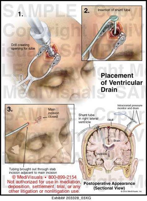 codman evd drain ventricular catheter bing images