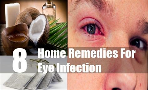 8 essential home remedies for eye infection