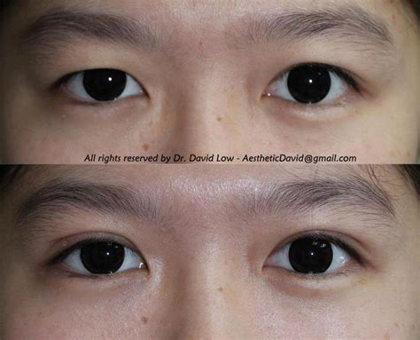double eyelid the art science of beauty double eyelid surgery