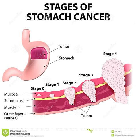 Stomach Problems After C Section by Gastric Cancer And Sections Of Stomach The Clinical