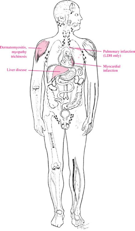 Alat Skin Test alt alanine aminotransferase causes symptoms