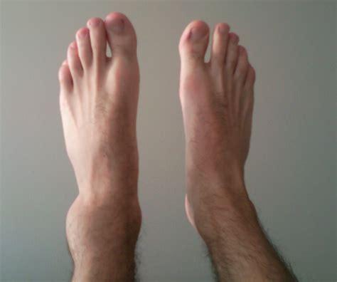 sprained ankle file sprained ankle 30min jpg