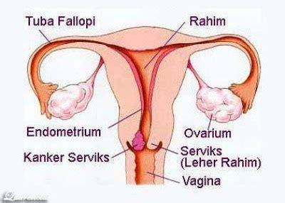 5 Jenis Rahim Wanita Penyakit Kanker Leher Rahim Atau Kanker Serviks Laurencius