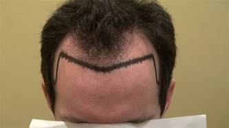 hairstyles for surgery san francisco receding hairline and temples hair