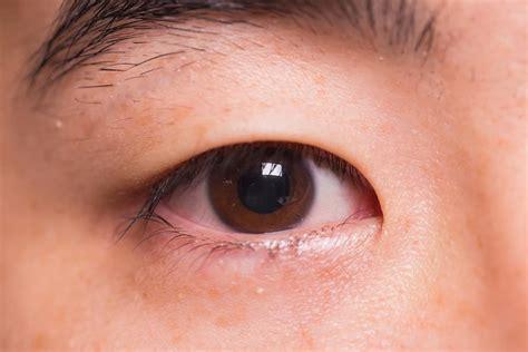 Obat Sakit Mata Seperti Bintitan penyakit bintitan obat gejala dll hello sehat