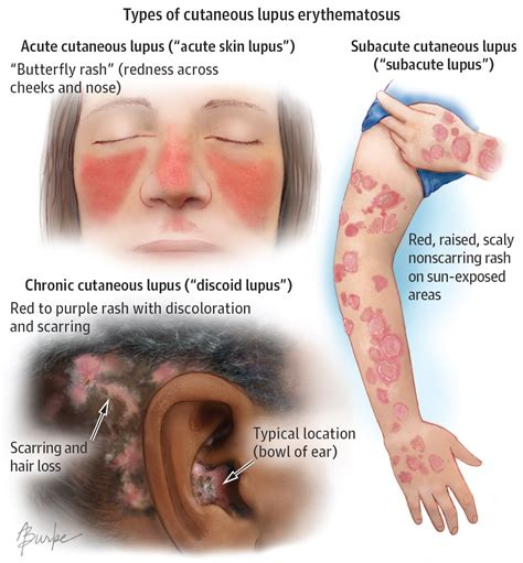sle of use cutaneous lupus erythematosus cle is lupus affecting the skin in this autoimmune disease the