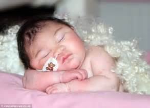 Baby Born Hers baby born with brain outside skull allowed home to die