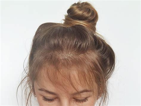 Kaminomoto Hair Growth Accelerator 2 Upgrade o w蛯osach piel苹gnacja w蛯os 243 w cienkich i delikatnych