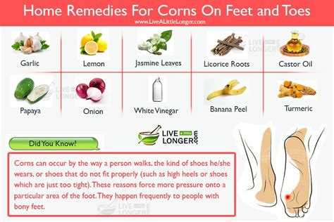 diy corn removal do it your self diy