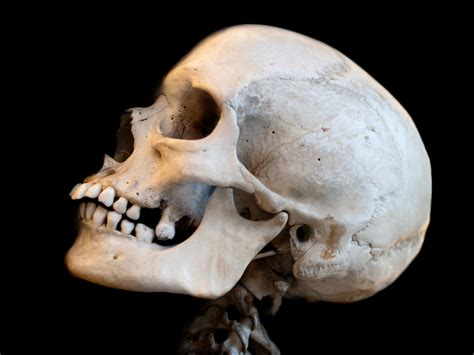 Scientists To Regrow Skulls With Stem Cells And Advanced Skull On
