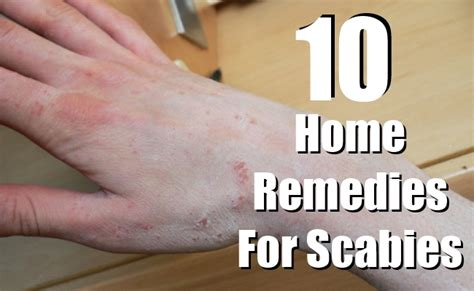 home remedies for scabies on scabies treatment