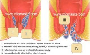 hemorrhoids pencil thin stools home remedy for