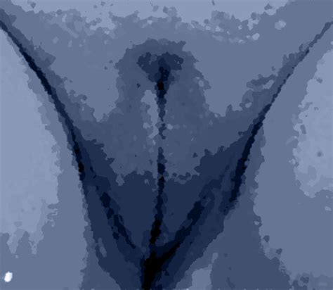 innere schamlippen labioplastik medizinische notwendigkeit oder weiblicher