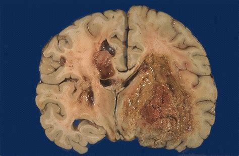 metastasi alla testa tumori cerebrali