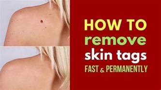 how to remove skin tags at home fast and permanently