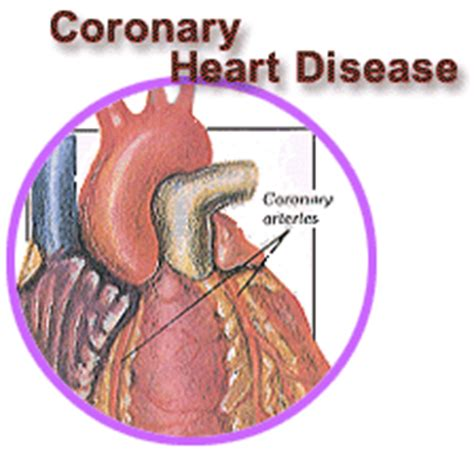 New tool to rule out coronary heart disease from ... Heart Bypass Complications