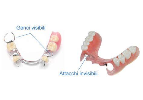 protesi mobili prezzi protesi dentaria mobile senza palato idee immagine mobili