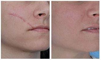 Obat Penghilang Tato Secara Alami salep menghilangkan bekas luka di wajah hilangkan tanpa