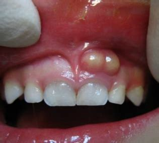 growth on s gum white spots on gums bumps pictures after using hydrogen peroxide brushing