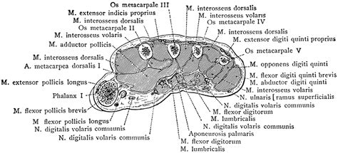 section hand cross section through middle metacarpal bones of the hand