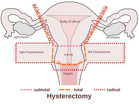 hysterectomy diagram total abdominal hysterectomy anatomy human anatomy diagram