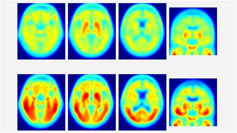 protein not tau protein not amyloid may be key driver of alzheimer s