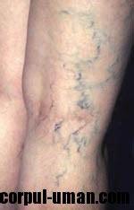 vene varicose interne varicele scapi de varice corpul uman