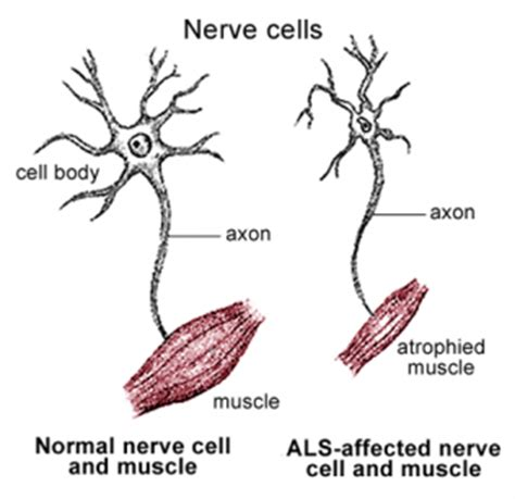 motor nerone disease symptoms of motor neurone disease stemcellshealthcare