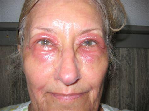 Lupus Eyes Gallery
