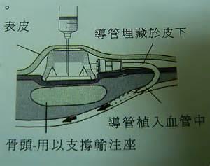 人工血管 port a 尋找感動 痞客邦 pixnet