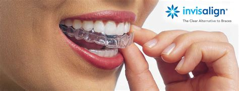 Custom Floor Plan by Invisalign Orthodontics Invisible Braces Teeth Alignment