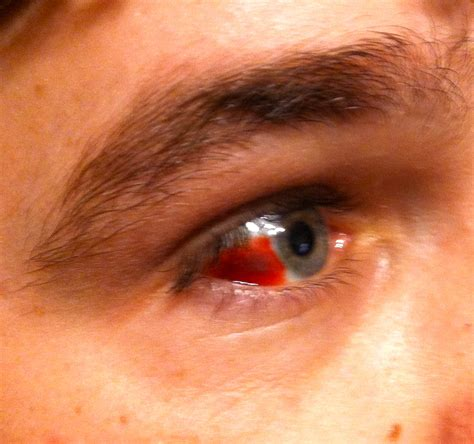 blood in s eye md stat talk to a doctor blood in the eye