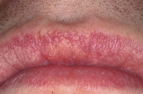 spot causes fordyce spots causes symptoms treatment home remedies pictures diseases pictures